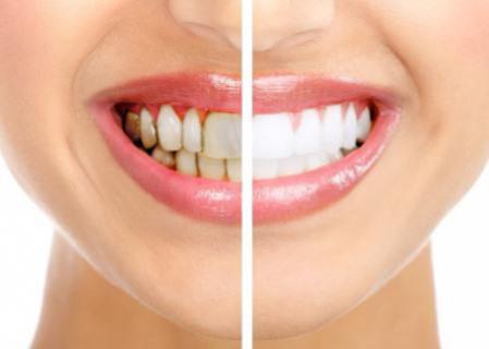 Cosmetische tandheelkundige